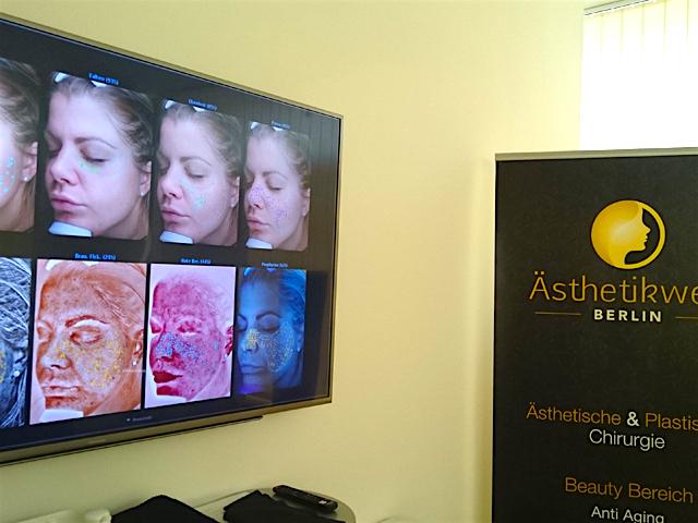 Aesthetikwelt Berlin Hautanalyse Test Erfahrung